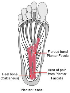Plantar Faciitis is no joke! Do lots of stretching and yoga to prevent it.